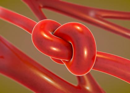 knotted blood vessel